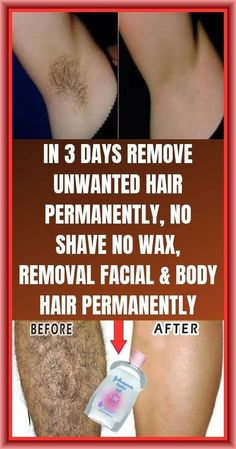 #HairRemovalMethods Chin Hair Removal, Underarm Hair Removal, Hair Removal Remedies, Hair Removal For Men, Laser Hair Removal, Remove Unwanted Facial Hair, Unwanted Hair, Permanent Hair Removal Cream, Hair Removal Machine