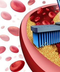How to clean your arteries? A clean and unclogged arteries can also lower your blood pressure, and reduce inflammation.
