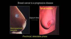 In a breast mammogram mole on skin