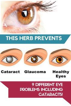 974 best eye health images on pinterest health, natural remediesthis herb prevents 9 different eye problems including cataracts!
