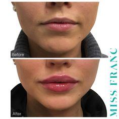 This is our clients second visit, with a few months in between lip injections, Botox Fillers, Dermal Fillers, Lip Fillers, Juviderm Lips, Botox Lips, Lip Injections, Lip Plumper, Lip Types, Lip Colors