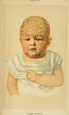 Eczema rubrum, an American Text-Book of the Diseases of Children, Louis Starr, 1900