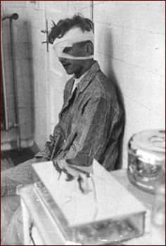 Holocaust Freezing Experiments   victim of a nazi medical experiment picture source 3 nazi