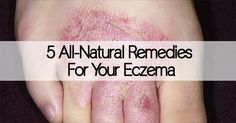 Eczema is a persistent and burdensome skin condition, but you can use home therapy to heal your eczema. There are lots of natural remedies for eczema.