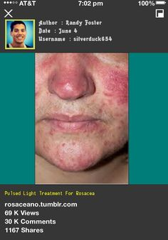 Pulsed Light Treatment For Rosacea 101552 - Rosacea Free Forever.