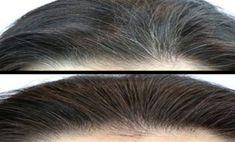 Szeretnél megszabadulni a szürke hajszálaktól? Van rá egy jó módszer, mutatjuk! Az őszülő haj problémája egyre gyakoribb a nők és férfiak körében egyaránt, és manapság már nem csak az ötvenen túliak haja kezd fehéredni. A szürke hajszálak