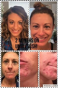 Adult acne is no fun! I love Laura's results after just 2 months on our Unblemish! You can tell she's a little thrilled herself!. #acnesucks.