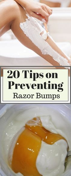 20 Quick and Easy Home Remedies to Get Rid of Razor Bumps and Burns Fast – Care – Skin care , beauty ideas and skin care tips Razor Burn Remedies, Shaving Bumps, Razor Burns, Long Hair Tips, Beauty Hacks, Beauty Tips, Diy Beauty, Beauty Care