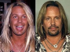 Vince Neil can u see it now? Celebrity List, Celebrity Pictures, Rolling Stones Keith Richards, 80s Hair Bands, Vince Neil, Celebrity Plastic Surgery, Best Rock Bands, Celebrities Then And Now, Steven Tyler