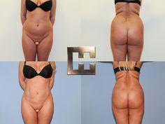 Fettabsaugung von Bauch und Flanken Liposuction, Bikinis, Swimwear, Fashion, Wels, Linz, Guys, La Mode, Fashion Illustrations