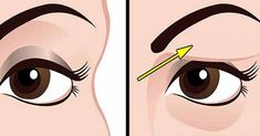 Saggy Eyelids, Drooping Eyelids, Droopy Eyes, Sagging Skin, Natural Treatments, Natural Remedies, Coconut Oil For Face, Face Yoga, Military Diet