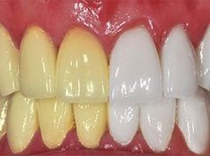 9 Tips om je tanden op een natuurlijk manier witter te maken.