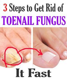 Try These 3 steps to get rid of toenail fungus. It works unbelievable. Try These 3 steps to get rid of toenail fungus. It works unbelievable. Toenail Fungus Home Remedies, Treating Toenail Fungus, Fungus Toenails, Toe Fungus Cure, Best Toenail Fungus Treatment, Cure Nails, Health Planner, Fungal Nail, Susa