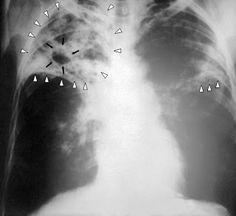Carl Jung Depth Psychology: Carl Jung's Letter regarding Tuberculosis [TB]