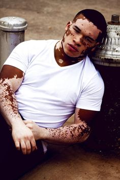 beautiful bruh w/ Vitiligo