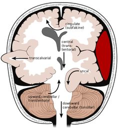 Brain Herniation — Types, Symptoms and Radiology Brain Anatomy, Medical Anatomy, Human Anatomy And Physiology, Skull Anatomy, Grey's Anatomy, Mri Brain, Brain Science, Medical Science, Life Science