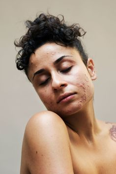 New skin photography human body freckles ideas Human Photography, Portrait Photography, Body Positivity Photography, Pretty People, Beautiful People, You Are Beautiful, Body Image Art, Overnight Face Mask, Pimples Overnight