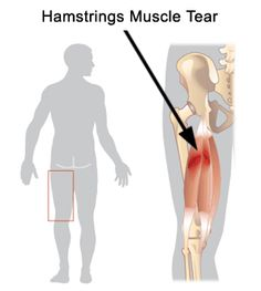 Hamstring Strains:  A strain is a minor tear of a muscle. Quick acceleration while running or cutting is most often the cause of hamstrings strains. A minor pulling or a pop may be noted in the back of the thigh. Pain, swelling, and an inability to run result. Treatment includes rest, ice, compression, elevation, and physical therapy.