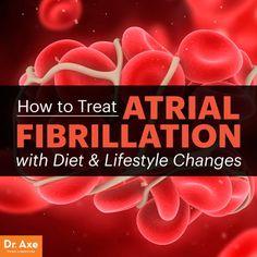 Natural Ways to Treat Atrial Fibrillation - Dr. Axe