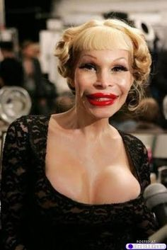 Way too much plastic surgery...