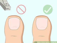 5 Ways to Relieve Ingrown Toe Nail Pain - wikiHow Remove Ingrown Toe Nail, Toenail Pain, Toenail Removal, Sore Feet, Nail Bed, Feet Nails, Nail Fungus, Nails At Home, Toenails