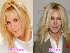 Joan Van Ark - Plastic Surgery Before and After