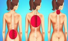 tiredness remedies Exercises to Improve Posture and Reduce Back Pain Scoliosis Exercises, Back Exercises, Stretching Exercises, Stretches, Yoga Fitness, Health Fitness, Sciatic Nerve, Nerve Pain, Headache Remedies
