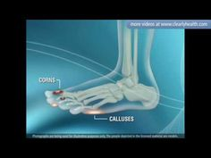 Great video - foot care tips for diabetics