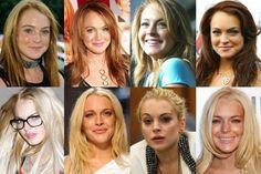 6. #Lindsay Lohan - 20 #Celebrities with Bad Plastic #Surgery... → #Celebs #Hiltons
