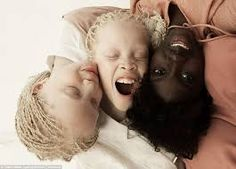 "Vinicius Terranova Showcases the Beauty and Complexity of Black Skin Tones.In ""Flores Raras,"" Brazilian artist Vinicius Terranova photographs Lara and Mara, black twins with albinism, and. Modelo Albino, Marie Claire, Albino Twins, Albino Model, Black Twins, Sheila, Cultural Diversity, Afro Punk, Photo Series"