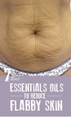 I will use Doterra oils. How to deal with loose skin after losing weight naturally? One of the most frustrating aspects of losing weight for both men and Essential Oil Uses, Natural Essential Oils, Young Living Essential Oils, Essential Ouls, Tighten Loose Skin, Tighten Stomach, Skin Firming Lotion, Moisturizer, Extra Skin