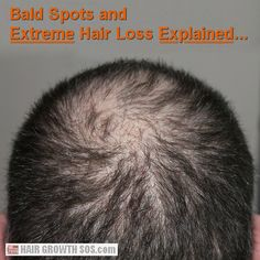 Bald spots can be caused by several types of hair loss. Learn about baldness and extreme hair loss from androgenetic alopecia. Dog Hair Loss, Losing Hair Women, Hair Loss Women, Androgenetic Alopecia, Dramatic Hair, Best Hair Oil, Bald Spot