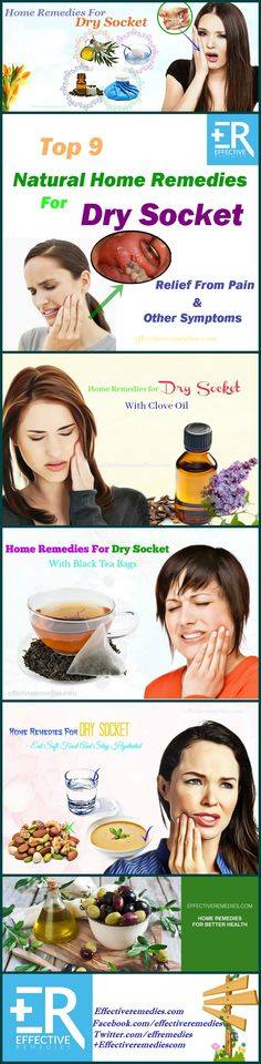 home remedies for dry socket symptoms