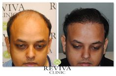 Cost Of Hair Transplant in Indiahttp://www.revivaclinic.com/hair-loss-women.aspx