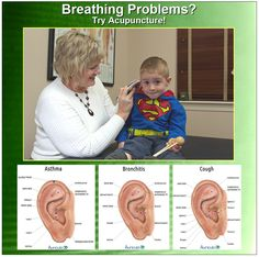 When your child can't breathe it's SCARY! Auriculotherapy is FAST and Effective! Tell the parents you know that Acupuncture is a drug-free treatment for breathing problems. Here are three protocols from the program Auriculo 3D. Simply an Amazing program! Click to learn more about Auriculo 3D: http://www.auriculo3d.com/index.php Spread the word...See an Acupuncturist FIRST! ~AlanG
