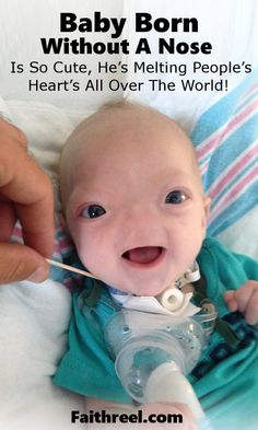 Baby Born Without A Nose Is So Cute, He's  The Ultimate Little Sweet Heart!