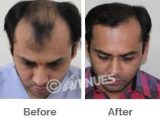 Avenues is prominent for Ahmedabad Hair Transplant offers high class infrastructure with advanced technologies .The procedure performed in this clinic is equipped with advanced machines and devices . We can say that Hair Transplant surgery is no more irritating process .With advanced facilities, trained doctors men hair remain healthy and shine which shows the care of clinic.