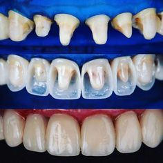 Dental Assistant Jobs Near Me 2020 Dental Hygiene School, Dental Life, Dental Art, Dental Humor, Dental Procedures, Dental Assistant, Dental Health, Dental Bonding, Dental Aesthetics