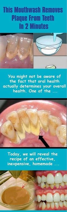 You might not be aware of the fact that oral health actually determines your overall health. One of the vital parts of the procedure for oral hygiene consists of using mouthwash. It reduces the presence of plaque while reaching and fighting bacteria that Teeth Health, Oral Health, Dental Health, Dental Care, Healthy Teeth, Gum Health, Natural Cures, Natural Health, Health Remedies