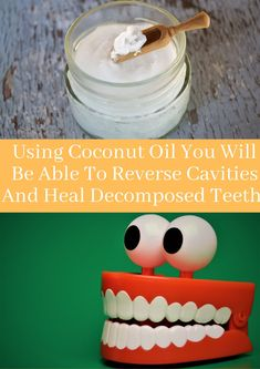 You are obviously familiar with the unending therapeutic focal points of coconut oil, in any case, you may now think about how this oil is exceedingly beneficial for your dental prosperity. Beautiful Paintings Of Nature, Reverse Cavities, Focal Points, Homemaking, Home Remedies, Coconut Oil, Dental, Health Care, Survival
