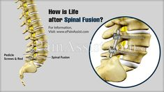 How effective is a spinal fusion and what about life after spinal fusion? How long does it take to recover and return to your day-to-day activities after undergoing a spinal fusion surgery? Back Surgery, Spine Surgery, Mckenzie Exercises, Lumbar Spinal Stenosis, Spinal Cord Stimulator, Spinal Fusion Surgery, Spondylolisthesis, Types Of Surgery, Degenerative Disc Disease