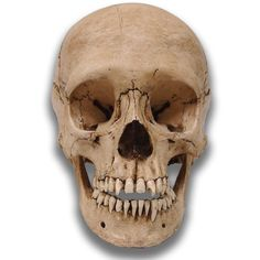 This adolescent skull has a massive infection of the left Maxilla. As with all of our museum quality skulls, Davey is a two piece skull cast in durable resin an