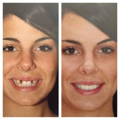 Dramatic results missing adult teeth replaced in 1 visit with dental implants and cosmetic crowns.
