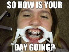 Best Dentist Jokes Ever! Braces Tips, Braces Off, Dental Braces, Teeth Braces, Dental Meme, Dentist Jokes, Best Dentist, Memes Humor, Meme Meme