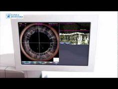 Cirugía personalizada - Láser LenSx para la cirugía de la catarata - http://www.cirugiaocular.com