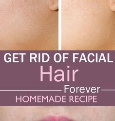 Learn how to remove facial hair in 15 minutes using only 3 simple ingredients. This is a very simple home remedy to remove facial hair without the need for hair removal creams or painful wax treatment. Beauty And More, Health And Beauty Tips, Health Tips, Belleza Diy, Tips Belleza, Beauty Secrets, Beauty Hacks, How To Get Rid, How To Remove