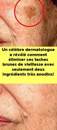 Un célèbre dermatologue a révélé comment éliminer ces taches brunes de vieillesse avec seulement deux ingrédients très anodins! Coco, Silhouette, Beauty, Ideas, Salud, Natural Home Remedies, Tips And Tricks, Cosmetology, Thoughts