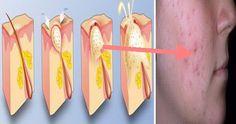 Un articol de Mihaela Iliescu     După cum ştim, din punct de vedere medical, acneea este o dematoză care se mainfestă prin inflamarea foli...