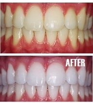 """Put a tiny bit of toothpaste into a small cup, mix in one teaspoon baking soda plus one teaspoon of hydrogen peroxide, and half a teaspoon water. Thoroughly mix then brush your teeth for two minutes. Remember to do it once a week until you have reached the results you want. Once your teeth are good and white, limit yourself to using the whitening treatment once every month or two."""" data-componentT"""