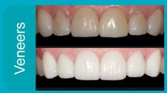 Porcelain veneers renew the look of chipped, stained, discolored, unevenly spaced, or slightly crooked front teeth.  drrawal.com